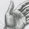Hand Re-Implantation